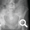 thumbnail of x-ray image